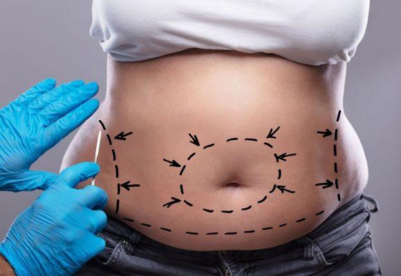 Quelles sont les opérations chirurgicales qui permettent de perdre du poids ?