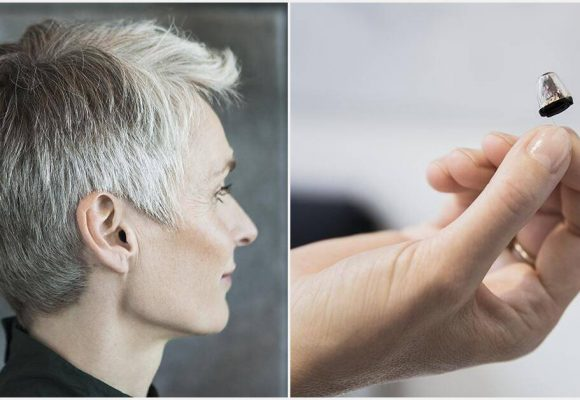Quels sont les prix des aides auditives ?